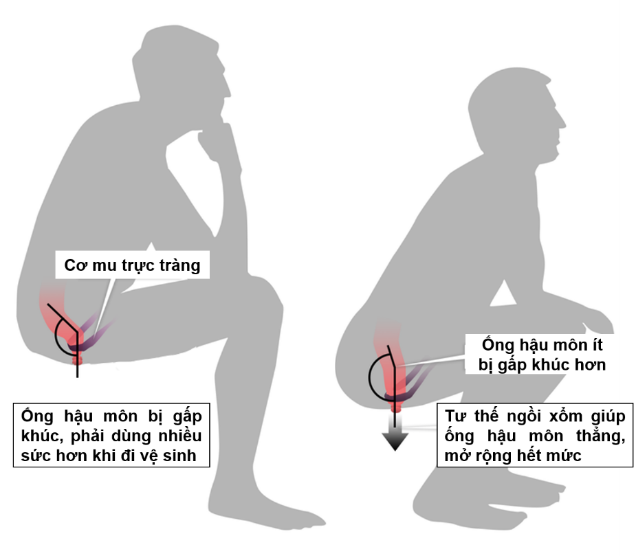 Tư thế ngồi xổm giúp cho việc đi vệ sinh trở nên dễ dàng hơn